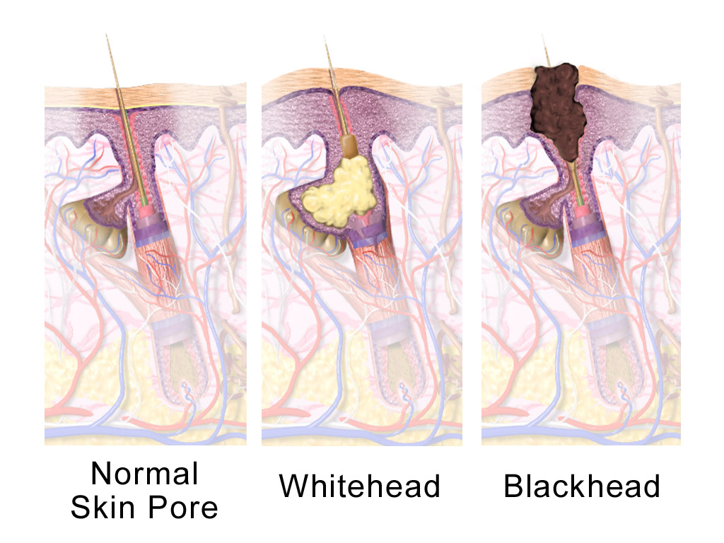 adult hormonal acne, what is hormonal acne, testosterone acne, does testosterone cause acne