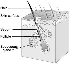 sebaceous gland, how to treat hormonal acne, cystic acne treatment, estrogen acne