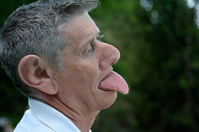 tongue pimple, pimple on tongue, pimple under tongue